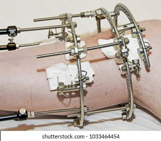 Leg in a steel cage after an accident
