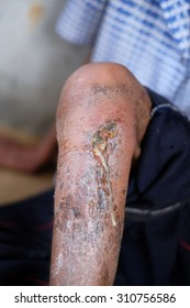 Leg ulcers,inflammation