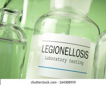 Legionella water testing laboratory
