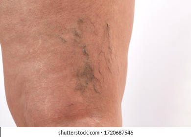 legs of a 40-year-old woman with stretch marks, cellulite and varicose veins close-up