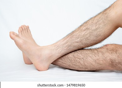 Legs hair removal for men, before.