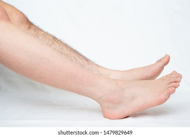 Legs hair removal for men, before & after. Applies to one leg only.
