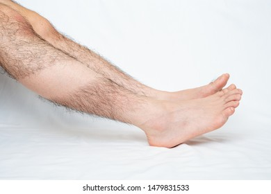 Legs hair removal for men, before & after. Applies only to part.