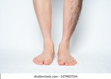 Legs hair removal for men, before and after. Apply to half of leg and one leg.