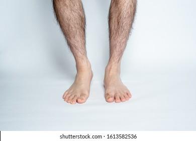 Legs hair removal for men, before.