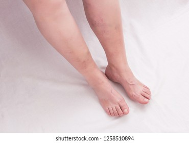 Legs of an old woman on a white background with varicose veins on the legs, phlebeurysm, anatomy
