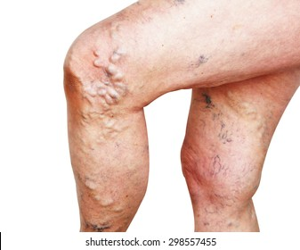 Legs of old woman with varicose veins on a white background.