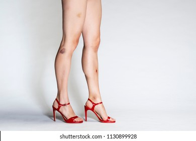 Legs on high heels walking in studio with bruises