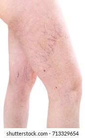 legs with spider varicose veins mole