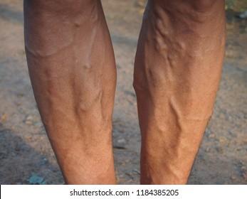 Legs are varicose veins.