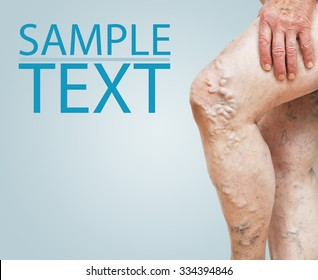 Legs with varicose veins and with space for text