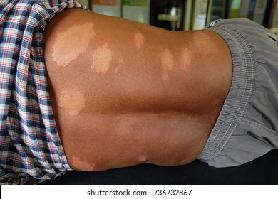 Leprosy, skin of the patient Leprosy , The white band on the back of the man