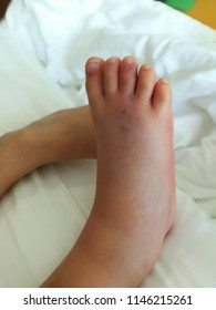 A lesion could be from snake centipede or scorpion bite on dorsal part of right foot showed two fang like marks with bluish redness color around it, swollen foot and toes. Painful to touch or move