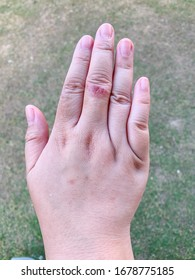 Läsion am Mittelfinger. Läsion von Bakterien und Kratzern. Mit der rechten Hand isolieren.