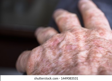Lesions of actinic keratosis or sunspots on sun-damaged skin of the hand of a man. This can be treated with cryosurgery