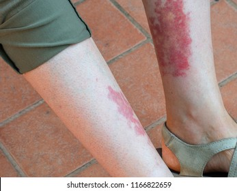 Leukocytoclastic vasculitis, an inflammatory reaction in the blood vessels. Aka golfer's, hiker's or exercise-induced-vasculitis or rash.