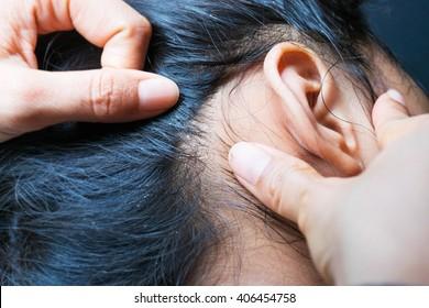 Lice on human hair