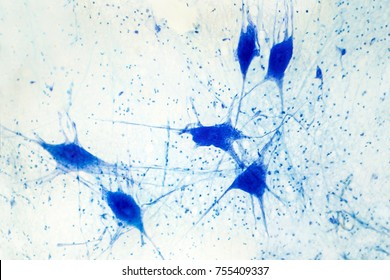 Light micrograph of human brain tissue showing neurons and glial cells