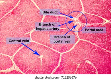 Light micrograph of a liver showing hepatic lobules and portal areas with hepatic duct, branches of portal vein and hepatic artery
