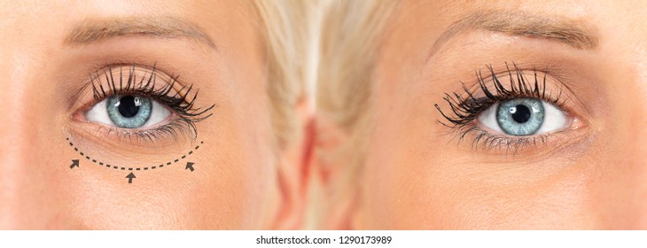Lines for blepharoplasty operation before and after surgical pla