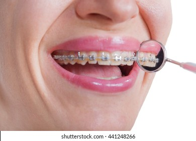 lingual braces on dental mirror, close up