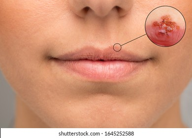 ✨ how to get rid of a bruised lip from kissing