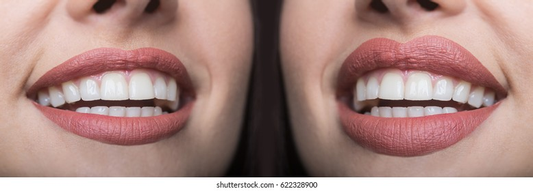 Lip filler injections before and after. Lips Fillers and botox injections. Lip augmentation. Beautiful Perfect Lips. Sexy Mouth close up. Sexy plump lips after filler injection and syringe injection