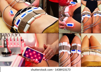 lipo laser. Hardware cosmetology. Body care. Non surgical body sculpting. body contouring treatment, anti-cellulite therapy. Large collage with different parts of the body.