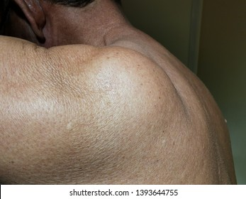 Lipoma or subcutaneous fat swelling of the shoulder