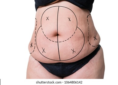 Liposuction, fat and cellulite removal concept, overweight female body with painted lines and arrows, isolated on white background