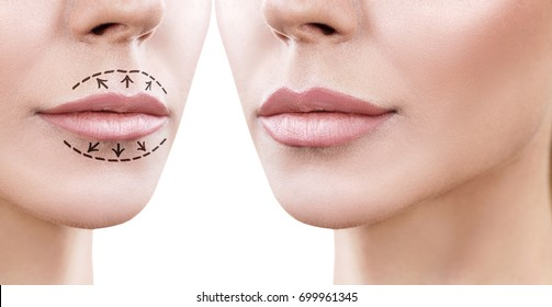 Lips of adult woman before and after augmentation