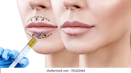 Lips of adult woman before and after augmentation.