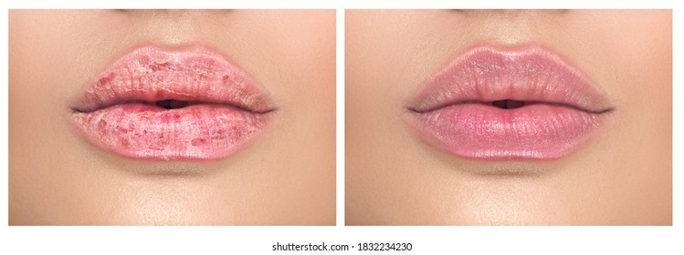 Lips. Close up of chapped, cracked lips, dry skin problem with mouth disease before and after treatment. Healthy woman lips, macro shot.