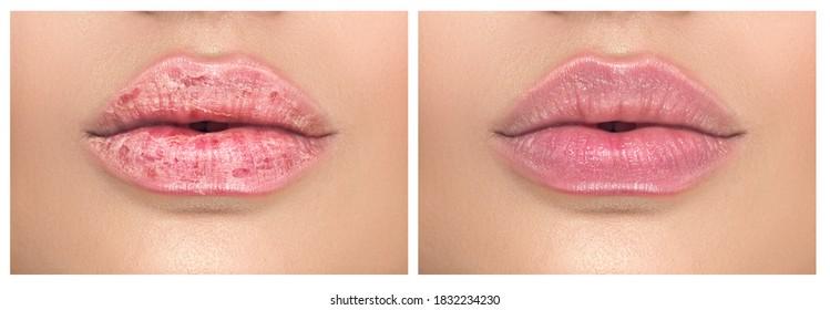 Schöne gesunde Lippen, Nahaufnahme. Vor und nach der Behandlung