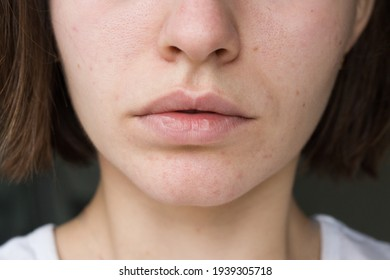 lips of a girl. acne on the chin. acne problem