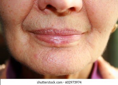 Lips. Silicone. Nasolabial folds Wrinkles around the mouth