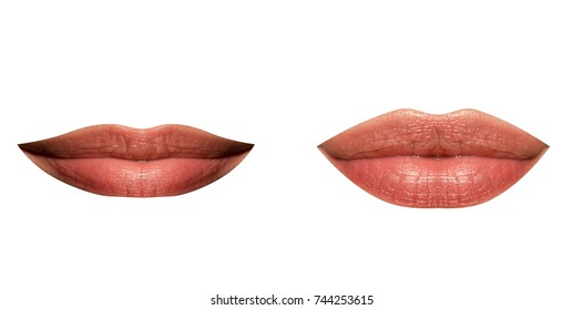 Lips of woman thin and full, set. Plastic lip correction. Botox and hyaluronic acid. Injections of youth, injections for the volume of lips. Girl made her lips big, beauty and makeup