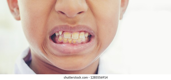Little Asian children Show Broken teeth.Kid with Teeth broken and rotten crop. baby juvenile teeth begin to loosen and fall out to make room for permanent teeth