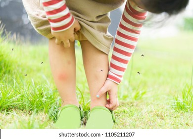 Little Asian girl has allergies with mosquitoes bite and itching her leg.Mosquito sucking blood on child skin
