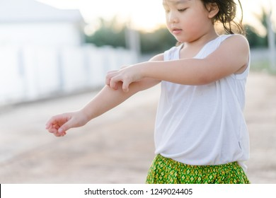 Little asian girl scratching an itch with hand outdoor.Kid's hand scratch itchy from allergy.Sensitive Skin, Food allergy symptoms, Irritation.