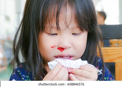 Little asian girl wipe her bleeding nose by tissue paper