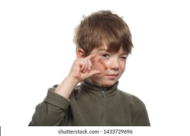 Little boy demonstrates big abrasion on the cheek under the eye. Isolated on white background.