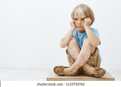 Little boy feeling gloomy being not like every other child. Unhappy cute blond child sitting with crossed feet on floor, holding hands on face and looking aside, having spots on skin or vitiligo