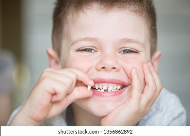 A little boy holds in his hand his first dropped milk tooth. The child is very proud of his growing up. Care for baby teeth and mouth