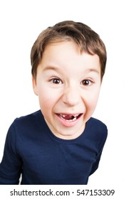 Little boy loses his incisors