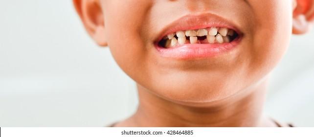 Little boy Show Broken teeth.boy with a Teeth broken and rotten