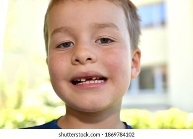 Niñito sonriendo sin un diente. Retrato de un niño sin dientes que ríe. Pequeño chico lindo sonriendo y mostrando sus dientes perdidos