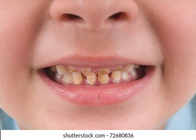 Little child  with broken and rotten teeth - see more DENTIST related pictures.