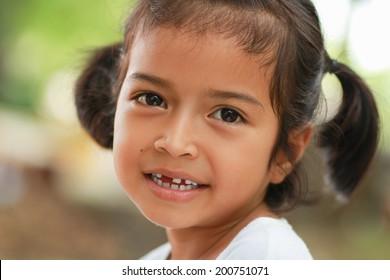 Little child with broken teeth.