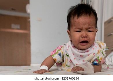 A little girl 6 month has Soseola infantum or Sixth disease or Exanthem subitum or seudo rubella baby sick ( Human herpes virus type 6 HHV6 ). After have fever hasr ash on skin. Unhappy with new virus